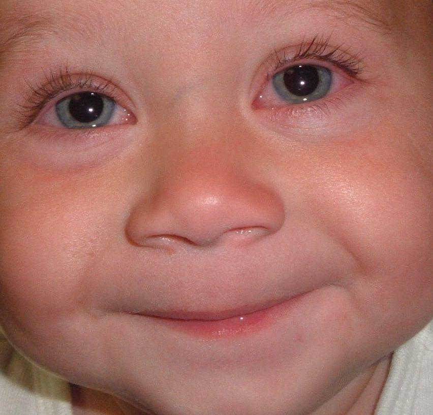 conjunctivitis children