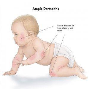 la dermatitis atópica en bebés, soluciones.