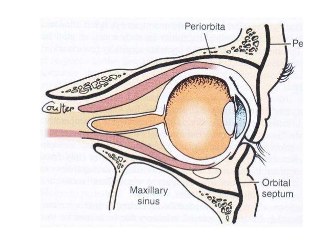 infección sinusal y ojos saltones