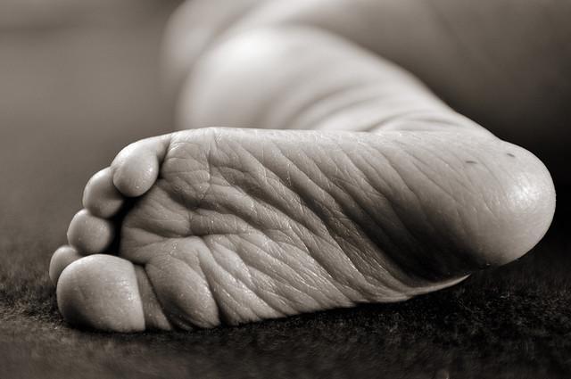 la prueba del talón cuando naces