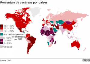Mapa de la cesárea en el mundo